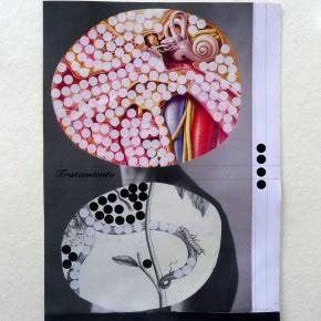 Luis Romero | Sin título (Tratamiento) | 2011 | Collage